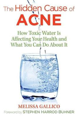 The Hidden Cause of Acne: How Toxic Water Is Affecting Your Health and What You Can Do about It (Paperback)