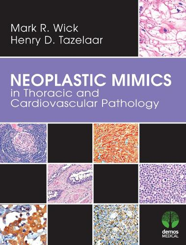Neoplastic Mimics in Thoracic and Cardiovascular Pathology (Hardback)