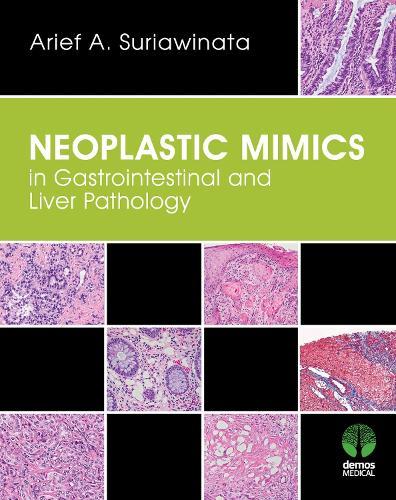 Neoplastic Mimics in Gastrointestinal and Liver Pathology (Hardback)