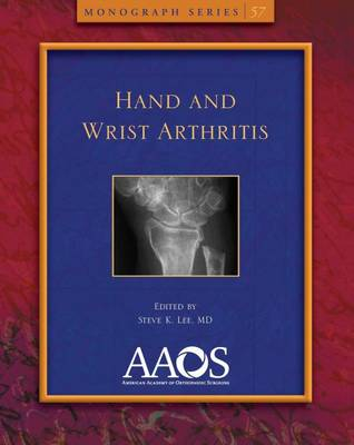 Hand and Wrist Arthritis - Monograph Series (Paperback)