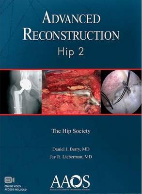 Advanced Reconstruction: Hip 2 (Hardback)