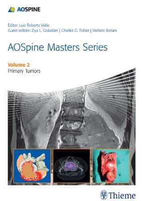 AOSpine Masters Series Volume 2: Primary Spinal Tumors - AOSpine Masters Series (Hardback)