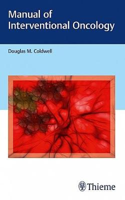 Manual of Interventional Oncology (Paperback)