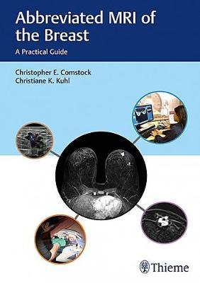 Abbreviated MRI of the Breast: A Practical Guide (Hardback)