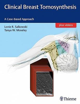 Clinical Breast Tomosynthesis: A Case-Based Approach (Hardback)