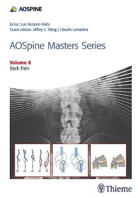 AOSpine Masters Series, Volume 8: Back Pain - AOSpine Masters Series (Hardback)