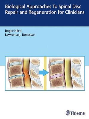 Biological Approaches to Spinal Disc Repair and Regeneration for Clinicians (Hardback)