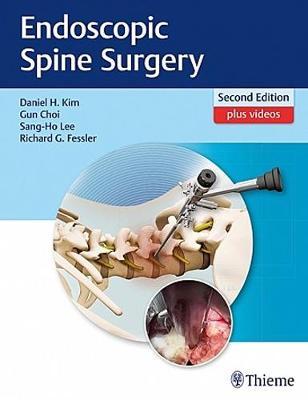 Endoscopic Spine Surgery (Hardback)