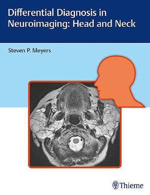 Differential Diagnosis in Neuroimaging: Head and Neck (Hardback)