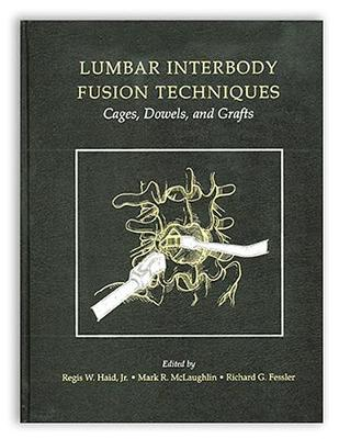 Lumbar Interbody Fusion Techniques: Cages, Dowels, and Grafts (Hardback)