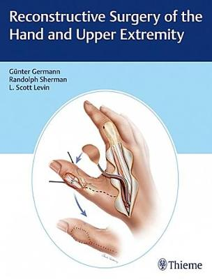 Reconstructive Surgery of the Hand and Upper Extremity (Hardback)
