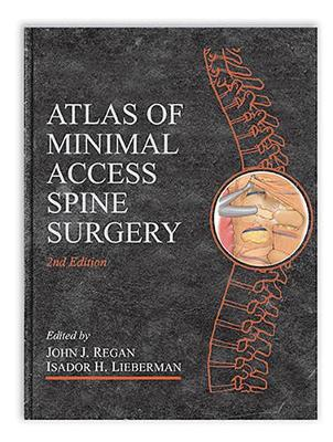 Atlas of Minimal Access Spine Surgery (Hardback)