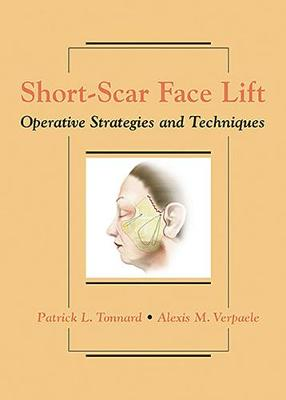 Short-Scar Face Lift: Operative Strategies and Techniques (Hardback)