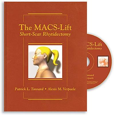 The MACS-Lift: Short-Scar Rhytidectomy (Hardback)
