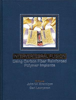 Intervertebral Fusion Using Carbon Fiber Reinforced Polymer Implants (Hardback)