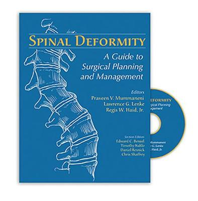 Spinal Deformity: A Guide to Surgical Planning and Management (Hardback)