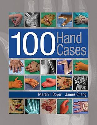 100 Hand Cases (Hardback)