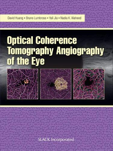 Optical Coherence Tomography Angiography of the Eye (Hardback)
