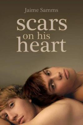 Scars on His Heart (Paperback)