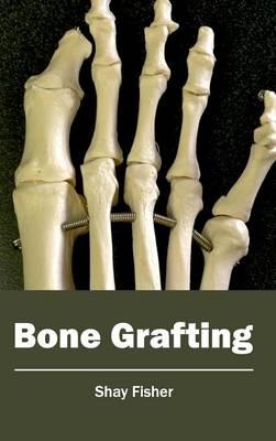 Bone Grafting (Hardback)