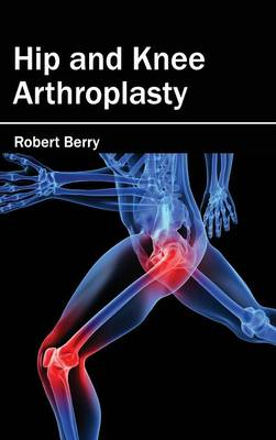 Hip and Knee Arthroplasty (Hardback)