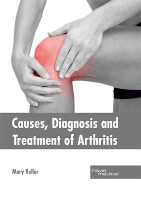 Causes, Diagnosis and Treatment of Arthritis (Hardback)