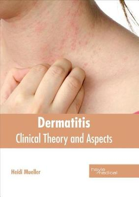 Dermatitis: Clinical Theory and Aspects (Hardback)