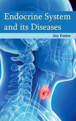 Endocrine System and Its Diseases (Hardback)