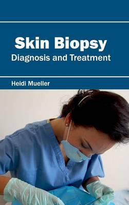 Skin Biopsy: Diagnosis and Treatment (Hardback)