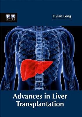 Advances in Liver Transplantation (Hardback)