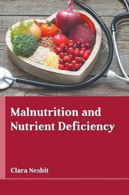 Malnutrition and Nutrient Deficiency (Hardback)