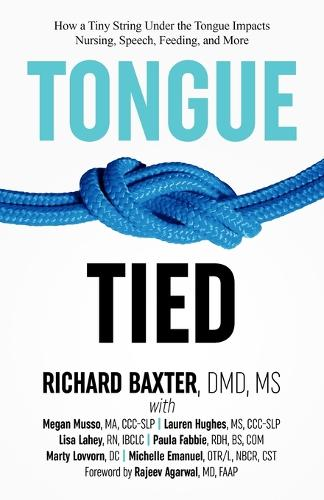 Tongue-Tied: How a Tiny String Under the Tongue Impacts Nursing, Speech, Feeding, and More (Paperback)