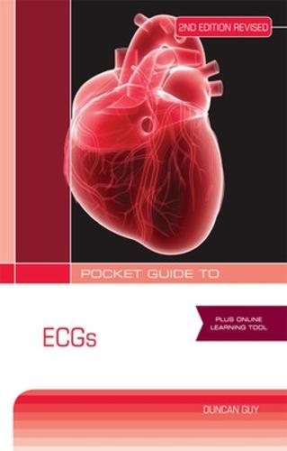 Pocket Guide to ECGs Second Revised Edition (Paperback)