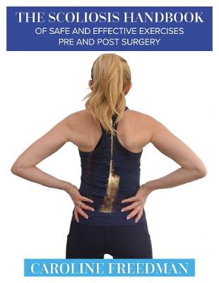The Scoliosis Handbook of Safe and Effective Exercises Pre and Post Surgery (Paperback)