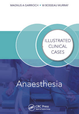 Anaesthesia: Illustrated Clinical Cases - Illustrated Clinical Cases (Paperback)