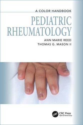 Pediatric Rheumatology: A Color Handbook - Medical Color Handbook Series (Paperback)
