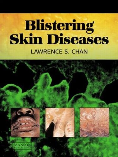 Blistering Skin Diseases (Paperback)