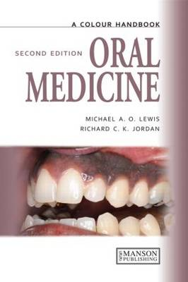 Oral Medicine, Second Edition - Medical Color Handbook Series (Paperback)