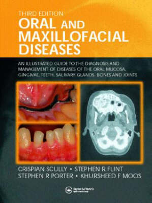 Oral and Maxillofacial Diseases: An Illustrated Guide to Diagnosis and Management of Diseases of the Oral Mucosa, Gingivae, Teeth, Salivary Glands, Bones and Joints (Hardback)