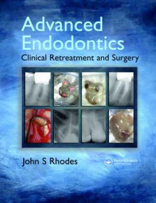 Advanced Endodontics (Hardback)