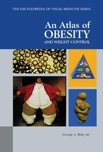 An Atlas of Obesity and Weight Control (Hardback)
