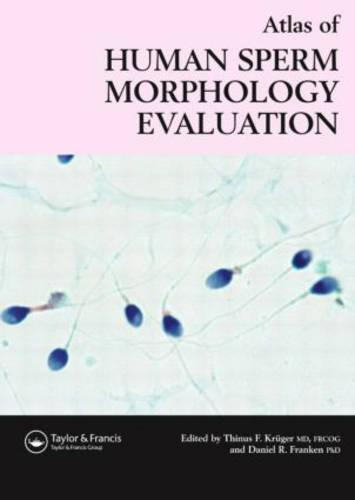 Atlas of Human Sperm Morphology Evaluation (Hardback)