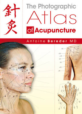 The Photographic Atlas of Acupuncture (Hardback)