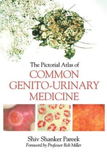 The Pictorial Atlas of Common Genito-Urinary Medicine (Paperback)