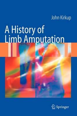 A History of Limb Amputation (Hardback)