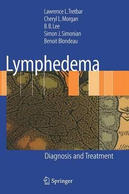 Lymphedema: Diagnosis and Treatment (Hardback)