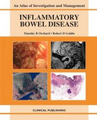 Inflammatory Bowel Disease - Atlas of Investigation and Management (Hardback)