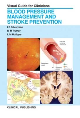 Blood Pressure Management and Stroke Prevention: Visual Guide for Clinicians (Hardback)