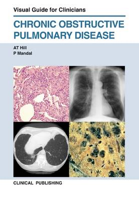 COPD: Visual Guide for Clinicians (Hardback)