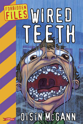 Wired Teeth - Forbidden Files (Paperback)